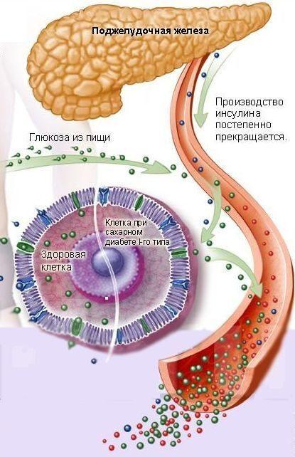 Беременность и сахарный диабет 1 типа