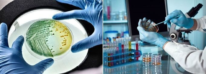 Лабалаторный анализ на дисбактериоз