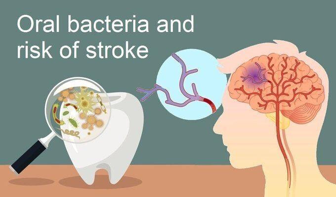 Oral bacteria and risk of stroke