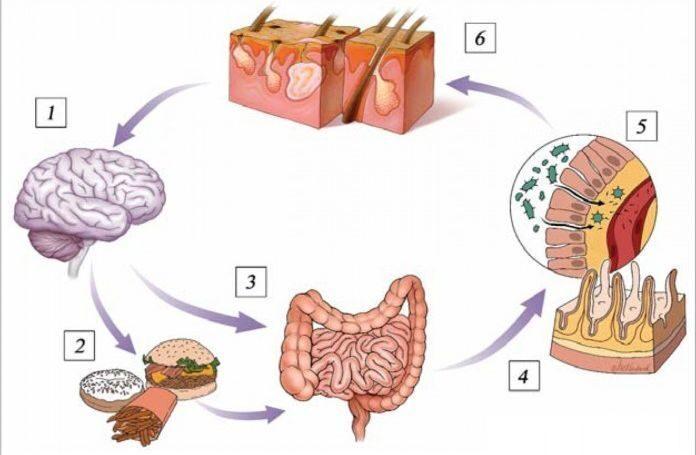 влияние геморроя на кишечник