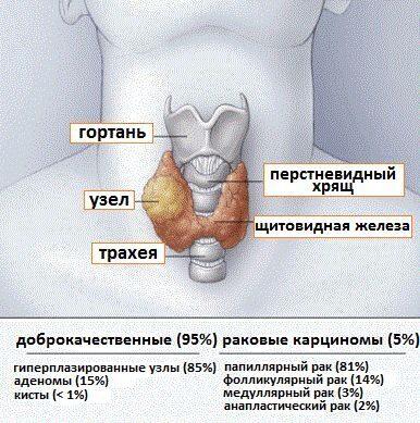 узлы щитовидной железы и раковые заболевания