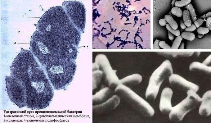 ultratonkiy_srez_propionovokislykh_bakteriy_1_kletochnaya_stenka_2_tsitoplazmaticheskaya_membrana_3_nukleidy_4_vklyucheniye_